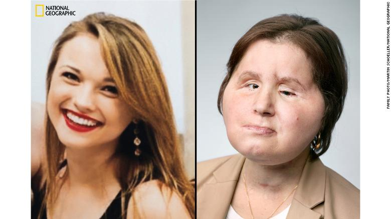 180810162525 02 face transplant katie stubblefield restricted exlarge 169