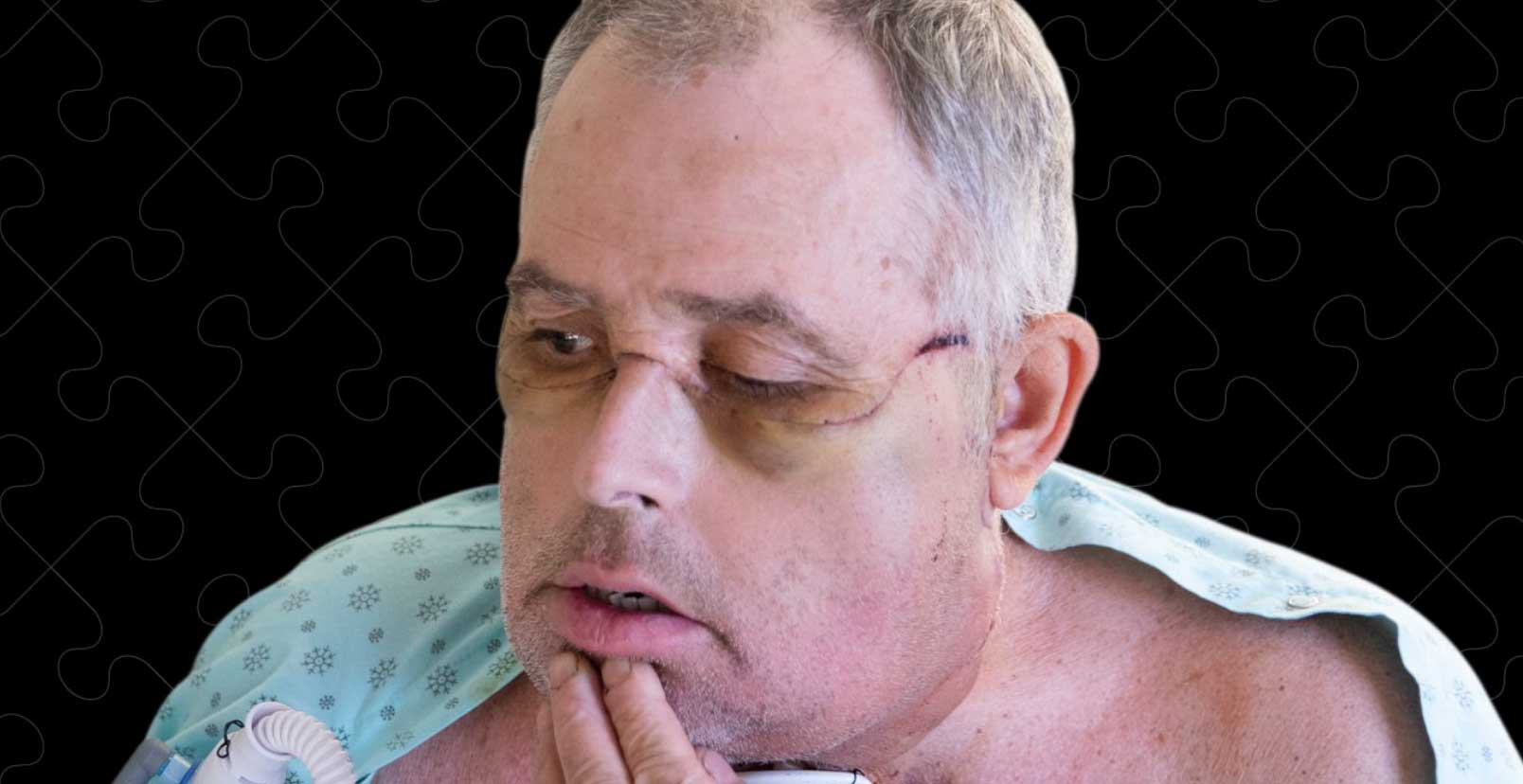 canadafirstfacetransplant
